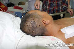 Chinese man injuries from Asian Giant Hornet attack