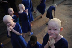 African albino children are at a particularly high risk of becoming a muti murder victim