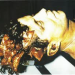John F. Kennedy head wound