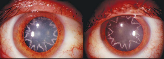 Star shaped cataracts formed in man's eyes after electrical accident