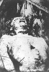 Mortuary photo of Catherine Eddowes - Jack the Ripper victim