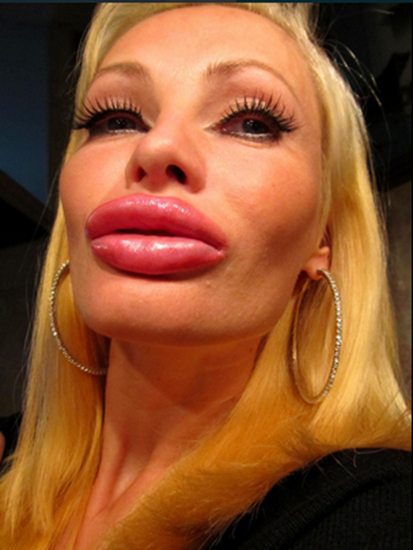 Victoria Wild after her transformation into a real-life blow-up doll