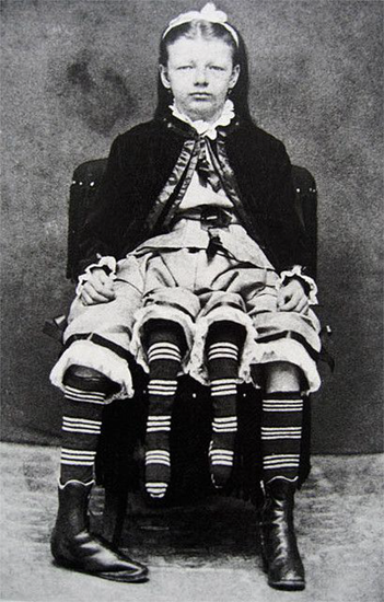 Josephine Myrtle Corbin (1818) had two separate pelvises growing side by side