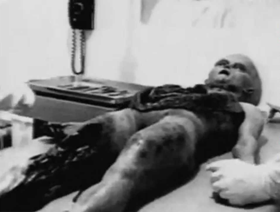 Recreation of 1940's Roswell alien autopsy