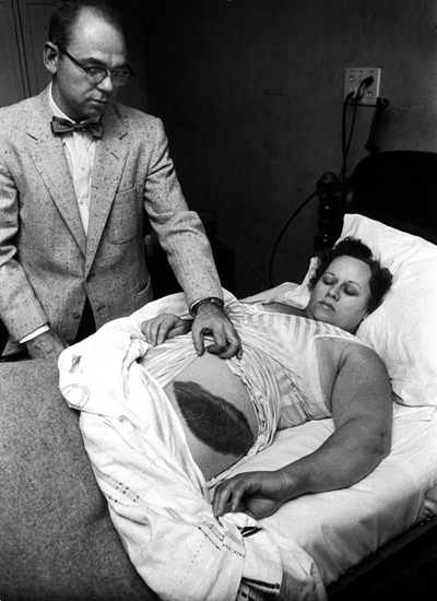 The only recorded incident of a person being struck by a meteorite – Moody Jacobs shows a giant bruise on the side of Ann Hodges – 1954.