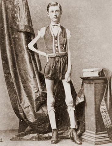 "Two years before his death, Isaac stood 5'6"" and weighed a paltry 45 lbs."