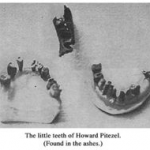 Burned teeth of Howard Pitezel