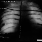 XRay shows the bullet embedded in Theodore Roosevelt's body