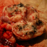 Teratoma tumor containing fine hair