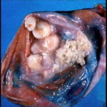 Teratoma tumor containing teeth