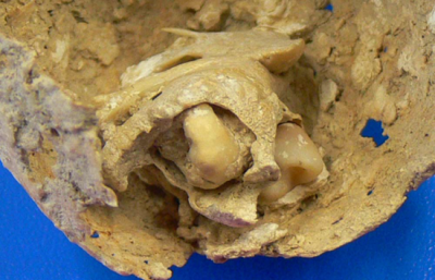Teratoma tumor containing teeth and bone