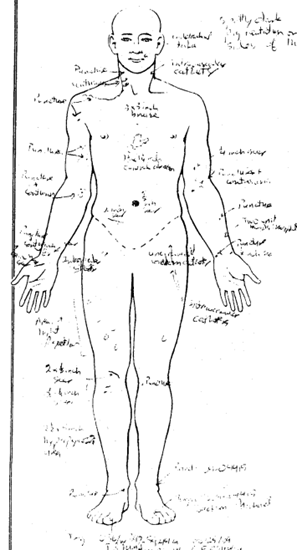 Michael Jackson autopsy showing the many scars and needle marks over the front of his body