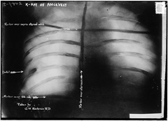 X-Ray showing the bullet lodged in President Theodore Roosevelt's chest