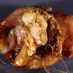 Teratoma tumor containing hair, bone, and teeth
