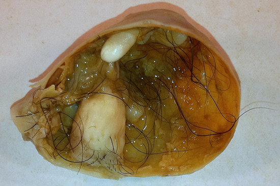 Teratoma tumor growing hair, bone, and teeth