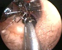 Endoscopic camera shows doctors removing ants from Shreya Darji's ear