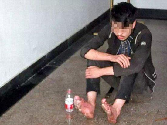 Man with rotting feet after week-long gaming binge