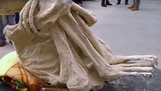 Mummified skeletal remains of Maria with elongated toes