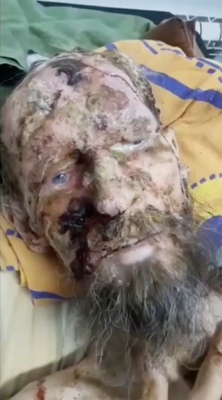 Man attacked by bear and left in cave