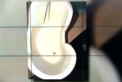 Brown recluse spider found inside woman's ear
